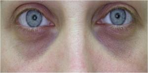 At 8 weeks in, these eyes look fantastic compared to what mine looked like...